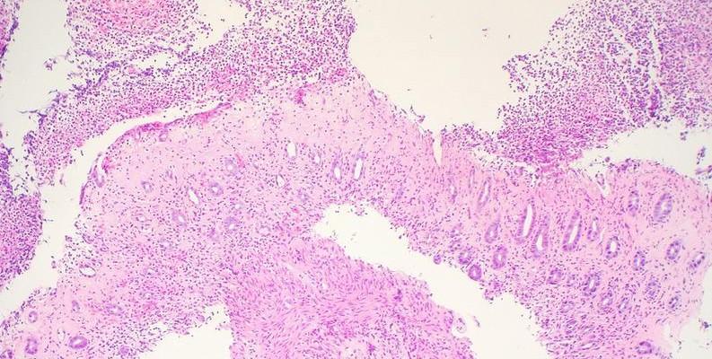 colitis-isquémica