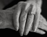 manos alzheimer
