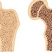 ossos